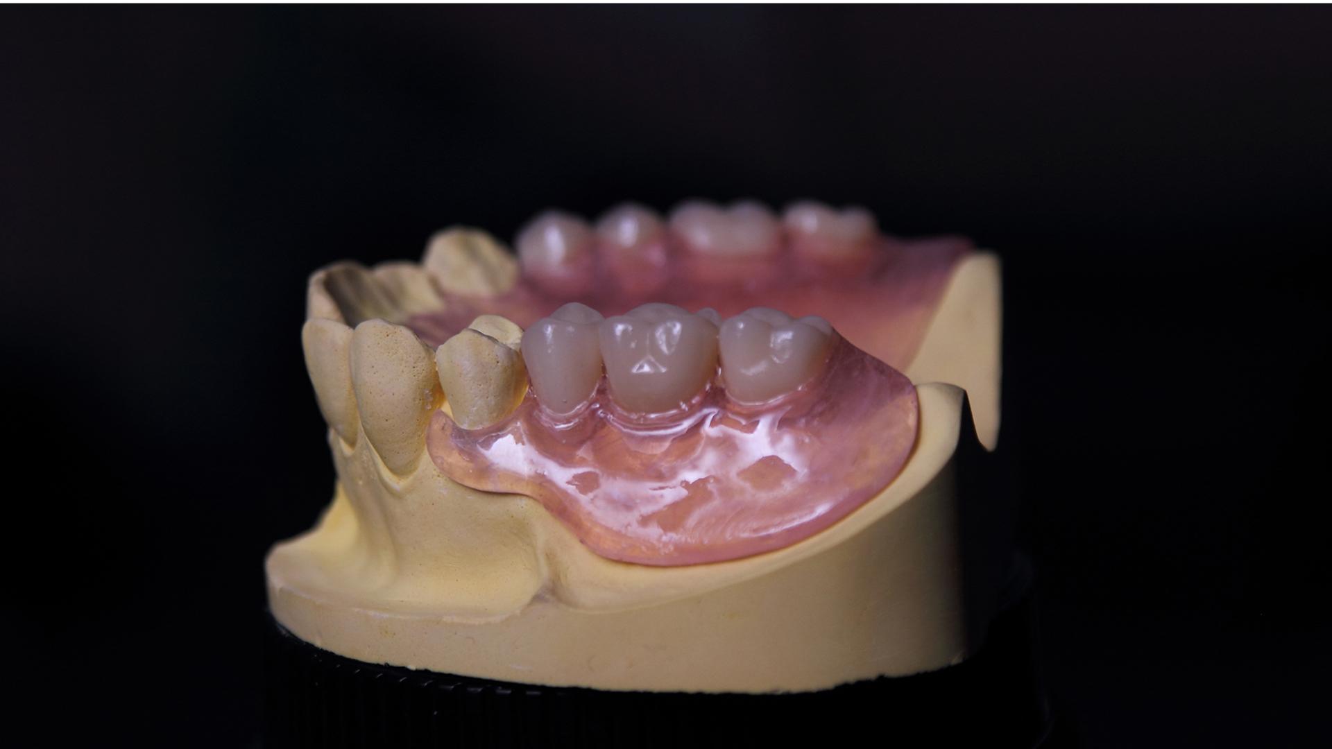 Еластични протези Термосенс еластична зъбна протеза вертекс термосенс vertex thermosens
