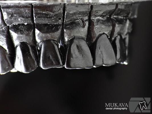 зъботехнически специализации Марин Дунев Варна зъботехник