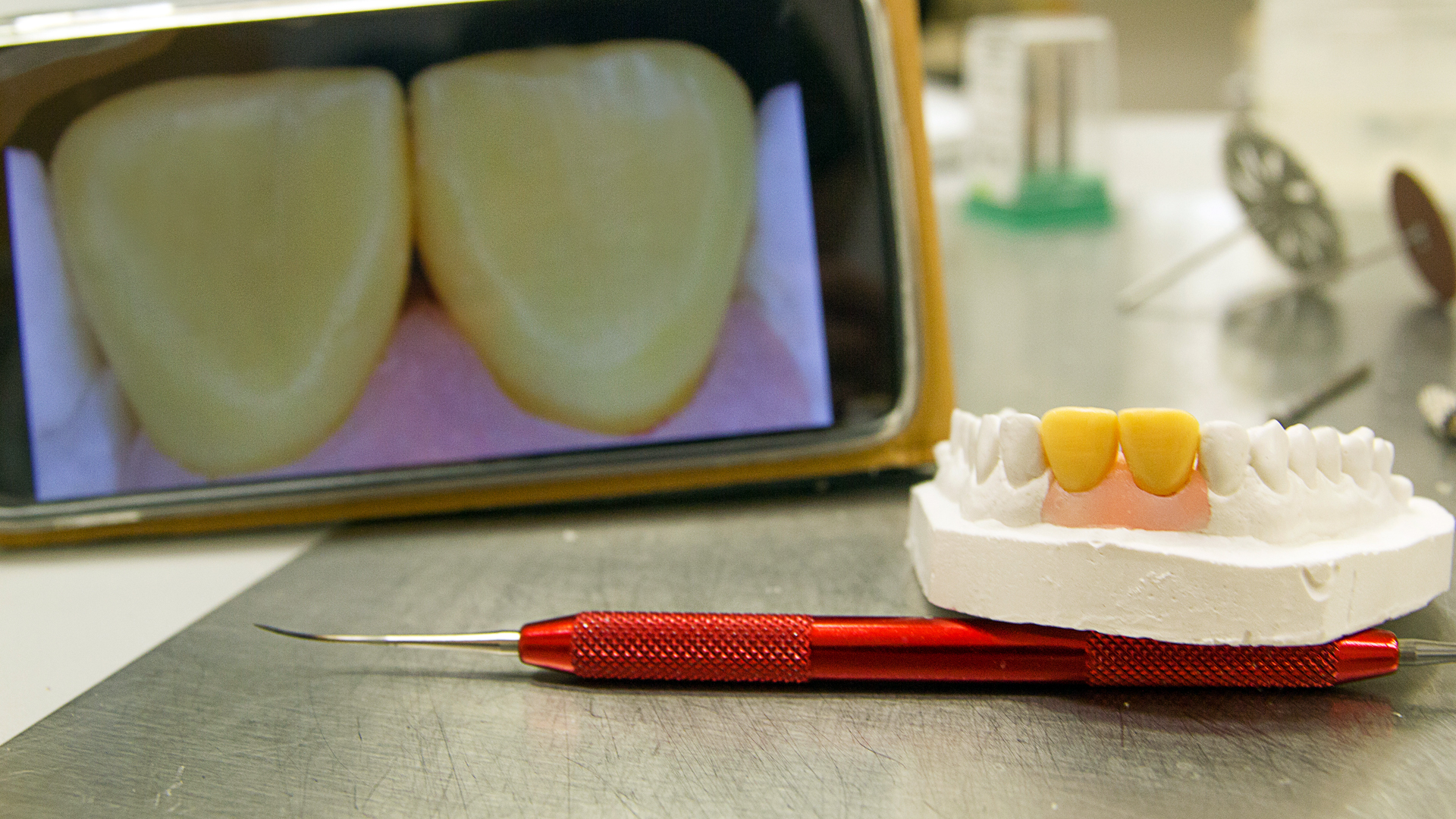wax up восъчен моделаж wax up mock up зъботехник варна